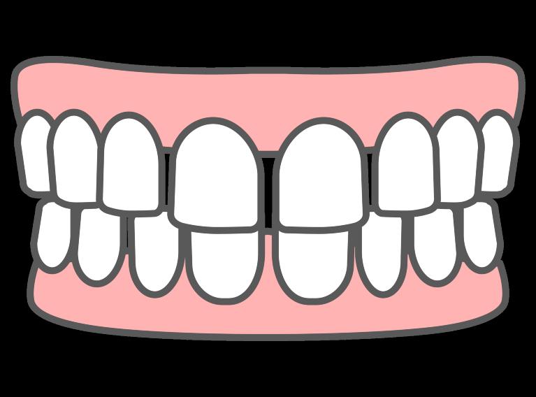 空隙歯列(すきっ歯)を直したい