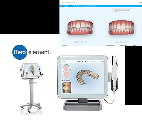 当院では、治療開始前に治療後の歯並びをシミュレーションすることができます!